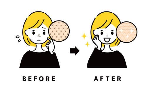 脱毛すると毛穴が減るって本当?顔脱毛が安くておすすめの医療脱毛・サロン脱毛を紹介