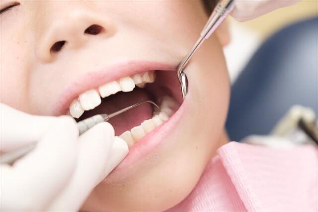 子供の歯科矯正の治療方法と費用相場